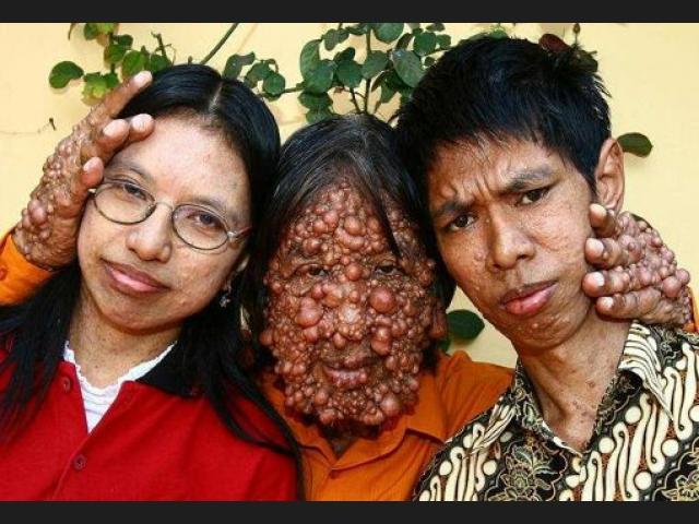 Atencion a las enfermedades raras surgidas por el Covid