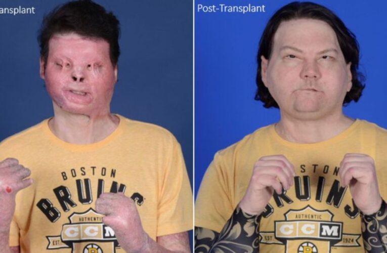 El primer trasplante de rostro y manos del mundo le da a un hombre de Nueva Jersey una segunda oportunidad en la vida